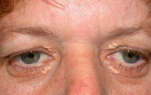 Xanthelasma FATTY DEPOSITS AROUND THE EYES