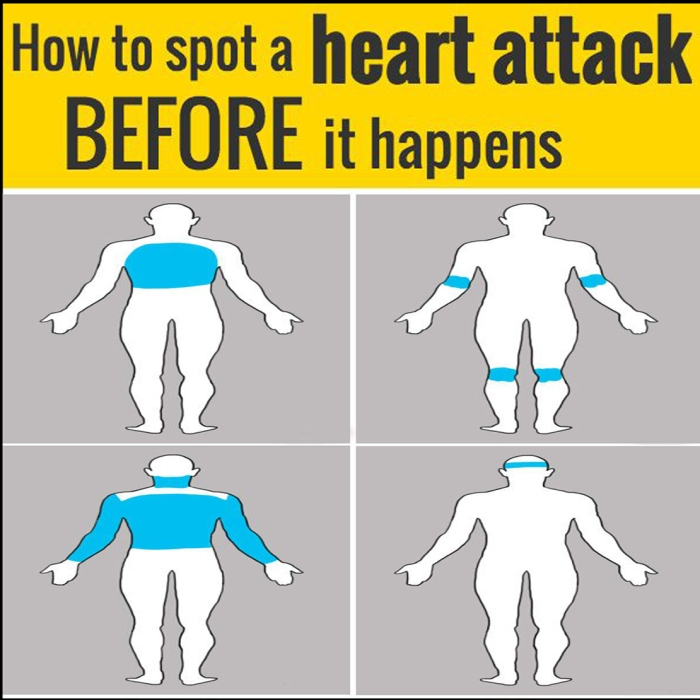 How to spot a heart attack before it happens - look out for pain in any of these parts of your body