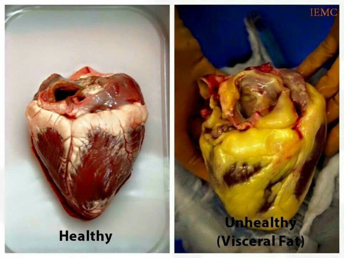 A healthy heart (on the left) and a heart encased with dangerous visceral fat (on the right)